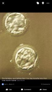 5 Day Embryos: Albuquerque Mom's Blog