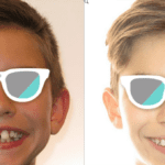 Early Orthodontic Treatment :: Is It Worth It?