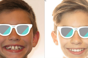 Protruding teeth | cornali & mcdonald orthodontic specialists | albuquerque moms blog